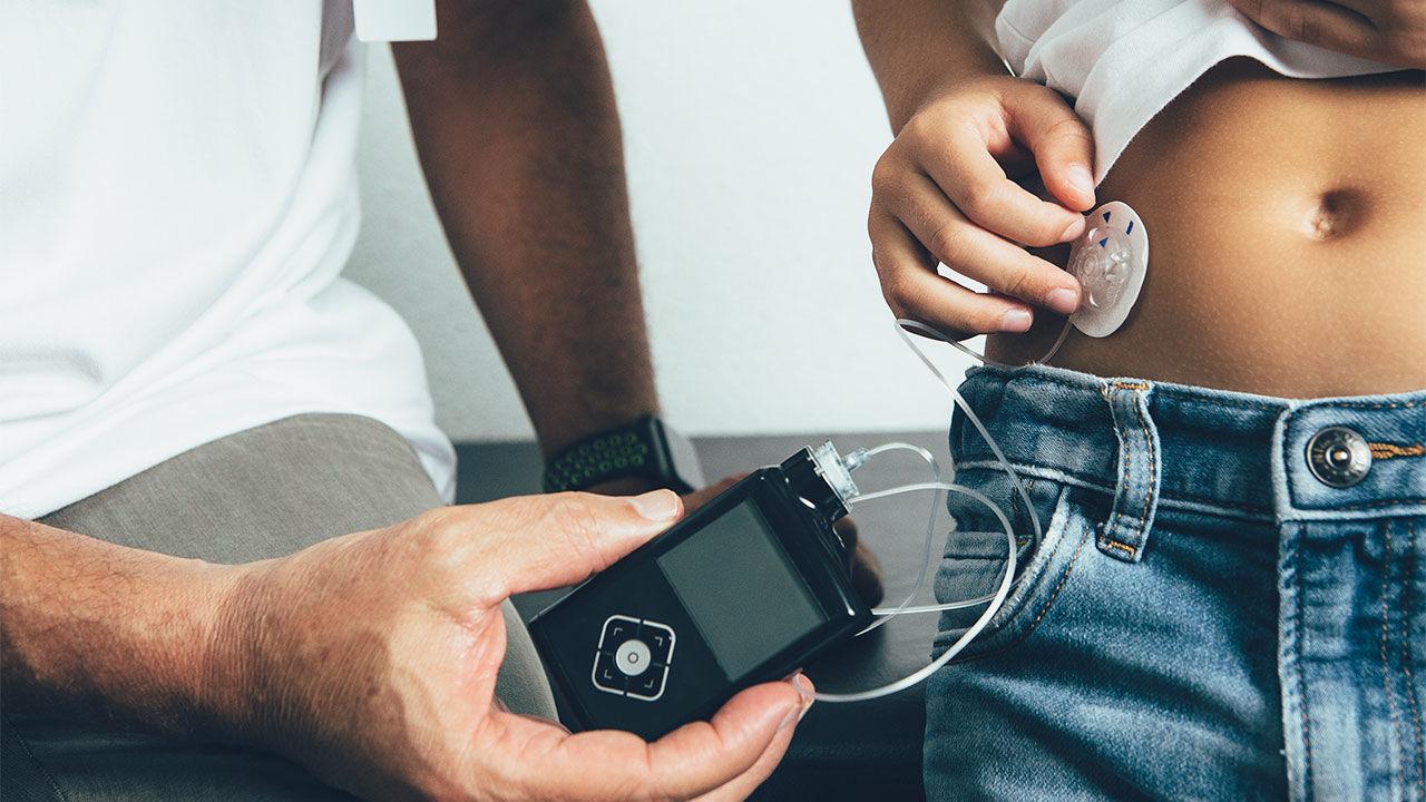 Scoperta nuova terapia per il diabete tipo 1 thumbnail